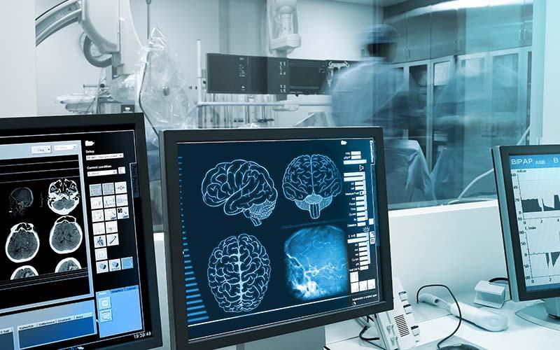 Computer Screen of TeleNeurology