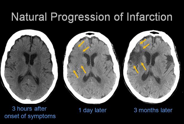 telestroke brain scans